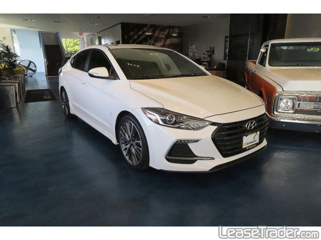 2018 Hyundai Elantra SE Front